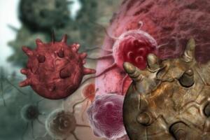 B17 Vitamini Nedir? Kansere Nasıl İyi Gelir? Kanserin Ölümü ve B17 Vitamin Eksikliği… Peki hangi gıdalarda B17 bulunur? Okuyalım, şifa niyetine paylaşalım… Günümüzde kanser hastalığına yakalanmış kişilerin sayısı artış göstermektedir. Ölüm riski oldukça yüksek olan kanserin hala tedavisi bulunamadı. Fakat B17 sayesinde bildiğimiz bütün tümörler yok oluyor!