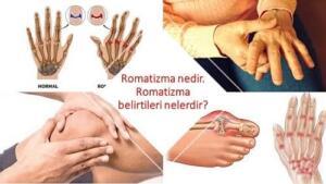 İltihaplı Eklem Romatizması ( Romatoid Artrit ) Nedir? Eklemlerde meydana gelen sıvı akışındaki bozukluk nedeni ile eklemlerdeki hareket kabiliyeti azalır ya da tamamen yok olur. Geçici bir hastalık olmayan iltihaplı eklem romatizması sürekli görülmektedir. Hastalığın nedeni tam olarak bilinemese de sigara kullanımı, genetik yapı ve enfeksiyon rahatsızlıklarının iltihaplı eklem romatizmasına neden olduğu düşünülmektedir. İltihaplı eklem romatizması belirtileri ile kendini göstermektedir. Aşağıda sıralanan belirtilerin bir kısmını hisseden kişilerin mutlaka bir doktora görünmesi gerekmektedir. Hastalığın ortaya çıkardığı belirtiler şu şekilde sıralanabilir: