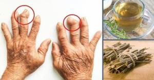 Önlem alınmadığı zaman ciddi etkilere neden olan iltihaplı eklem romatizması ne iyi gelir diye merak edenlerin sayısı bir hayli fazladır. Çok sancılı ve ağrılı olan bu rahatsızlık insan sağlığını çok fazla etkilemektedir. Sancı ve ağrılar ilerlediği zaman kişi üzerinde kalıcı hasarlar meydana gelebilmektedir.