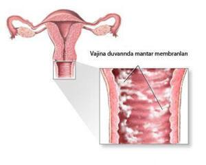 Herşeyden önce genital bölgenin temizliği ve oradaki mikropların yok edilmesi oldukça önemlidir.