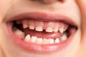 Çocuklarınızın süt dişlerini çektirirken ileride herhangi bir hastalığınızın tedavisinde kullanabileceğiniz aklınıza gelmiş miydi? Süt dişleri ve 20 yaş dişleri yakın gelecekte kök hücre tedavisi sayesinde sizin ya da ailenizin bireylerinin çeşitli hastalıklarının tedavisinde kullanılabilecek.