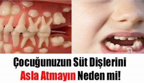 Çocuğunuzun süt dişlerini sakın atmayın! Bakın neye yarıyor