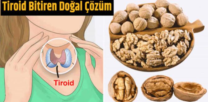 Tiroid Hastalarına İlaçsız Doğal Çözüm