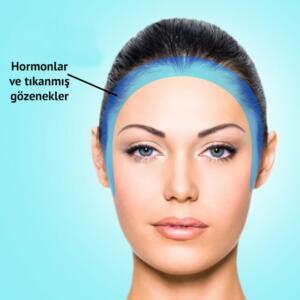 Çene bölgesinde oluşan akneler hormon seviyenizi ontrol etmeniz anlamına gelir. Bölge 3: Yüzünüzün kenarları