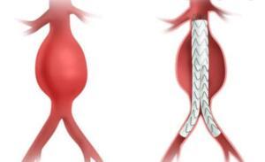 """5.5 SANTİMİ BULDUĞUNDA YIRTILMA RİSKİ ARTAR"""" Operasyonunun risklerine ve ciddiyetine dikkat çeken İstinye Üniversite Hastanesi Medical Park Gaziosmanpaşa Hastanesi Kalp ve Damar Cerrahisi Uzmanı Doç. Dr. Mustafa Bilgi Erdoğan, """"Karın içindeki aort damarının çapı ortalama 2.5 santimetre. Özellikle 5.5 santimi bulduğunda yırtılma riski artar. Sefer Bey'de 9.5 santimetrelik oldukça büyük bir anevrizma ile karşılaştık. Anevrizmanın başlangıcı böbrek damarına çok yakındı, çok nadir rastladığımız bir durumdu"""" ifadelerini kullandı."""