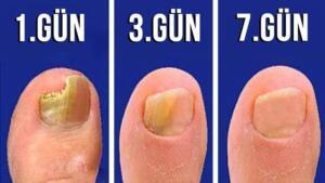 Uzun süre havasız kalan ayaklarınız terler ve mantarlar için elverişli bir ortam oluşur. Bir kere mantar ayağa yerleştikten sonra kurtulması oldukça zordur. Piyasada satılan ve yüzlerce lira aldığımız ilaçlar ancak kontrol altına alabiliyor ve hayatımızı oldukça zora sokuyor. Aslında, sadece doğal yöntemler kullanarak mantardan kurtulmak oldukça kolay.