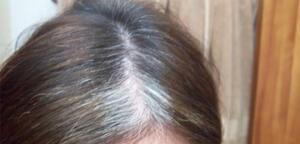 Aslında, karbonat saçlarınızı tamamen doğal olarak temizleyebilir. Ayrıca, yumuşak ve sağlıklı hale getirebilir.Saç. dökülmesini durdurabilir ve saç büyümesini destekleyebilir. Saç Uzamasını Sağlıyor Saçınızı toksinler ve kimyasallar yüklenirse saç büyümesini engelleyecektir. Karbonat bu toksinleri kimyasalları yok etmede çok etkili.