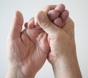 Ellerin uyuşukluğu, bir sebepten ötürü kan akışının kesilmesiyle oluşur. Kazara elinizin üzerine oturmaktan kaynaklanabileceği gibi, bir çok ciddi sağlık problemi de el uyuşmasına sebep olmaktadır. Hazırladığımız bu içeriği dikkatlice okuyun ve şayet bu durumlardan biriyle bile karşılaşırsanız hemen bir doktora başvurun.