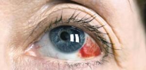 Glokom dünyada geri dönüşümsüz körlüğün en yaygın nedenlerinden biridir. Gözdeki sıvı tahliye edilemediğinde ve göz küresinde basınç normalden daha fazla arttığında geri dönüşü olmayan sinir hasarı meydana gelir. Akut açı kapanması ve açık açılı glokomun semptomlarını tanımanın yanı sıra risk faktörlerinizi anlamanız, doğru tedavi almanızı ve gözünüze daha fazla zarar vermemesini sağlamanıza yardımcı olabilir.
