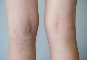 Varis damarları sadece çirkin görünmüyor aynı zamanda ağrı ve acı veriyor. Tedavi edilmediği taktirde bir çok sağlıksorunlarına yol açmaktadır. Varis, bacaklarnızdaki toplardamarların kanı tersi yönünde temizlenmesi için akciğerlere ve kalbe taşıyan damarlardır. Kan akımının sağlanması için aşağı doğru kanın toplanmasını engelleyen kapakların hasar görmesi sonucunda, kanın aşağı doğru basınç oluşturması varisleri oluşturmaktadır.