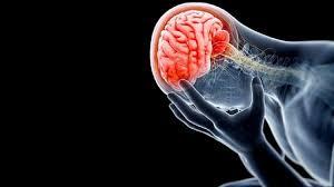 Anevrizmaların (Baloncukların) Belirtileri Nelerdir, Hangi Sıklıkta Görülür? Anevrizmaların çoğu kanayana kadar genellikle herhangi bir belirti vermez. Kanama dışında en sık belirti baş ağrısıdır. Uzun süreli baş ağrısı çekenlerde ve baş ağrısı karakter değiştirdiğinde veya ani şiddetli baş ağrıları olduğunda beyinde baloncuk olabileceği akla gelmeli ve uygun tetkiklerle araştırılmalıdır. Kanama olduğunda hastalar, hayatları boyunca görmedikleri en şiddetli baş ağrısını tarif ederler. Kanama ile birlikte bilinç kapanmasına ve % 20-30 hastada ölüme giden nörolojik değişikliler olabilir. Bilinci kapanmayan hastalarda çeşitli derecede nörolojik fonksiyon kayıpları, sürekli baş ağrıları bulunabilir. Kanamayan hastalarda, daha hafif baş ağrıları, anevrizma basısına veya pıhtı atmasına bağlı nörolojik fonksiyon kayıpları, sara nöbetleri (epilepsi) görülebilir.