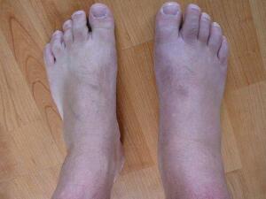 Kuru, sert ve çatlamış topuklar özellikle ayakkabılarımızın içinde rahatsız etmektedir. Karbonat ile ayaklarınızı hem yumuşacık hem de rahatlamış olarak ucuz ama çok etkili bir yöntemdir. Özellikle bütün gün ayakta olanlar için bir kurtarıcı niteliğindedir. Aynı zaman da ayaklarınıza pedikür yaparak ölü deriyi kaldırır.