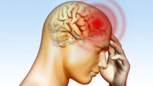 Beyin anevrizmalarının çoğu beyin atardamarlarının ana dallanma noktalarında izleniyor. Çoğu kez, yırtılıp kanayıncaya dek anlaşılamıyor.
