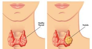 Tiroid Bozukluğuna İşaret Eden 14 Belirti