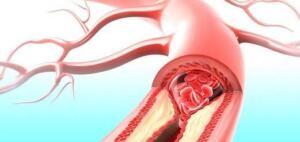 Bacakta kan pıhtılaşması South Carolina Myrtle Beach Grand Strand Bölge Tıp Merkezi travma cerrahı ve yoğun bakım hekimi Akram Al Eş'ari, M.D., kan pıhtısının en yaygın görüldüğü yerin bacakların dizden alt kısmı olduğunu bildiriyor.