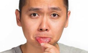 Aft Bulaşıcı mıdır? Aft nedenleri ne olursa olsun meydana gelen bu problem bulaşıcı değildir ve çıktığı yerlerde kaşıntı ile kızarıklık şikayetlerine sebep olmaktadır. Ağızda Aft Yarası Neden Çıkar? – Stres dolu bir yaşam – Asitli besin tüketimi – Hijyenik olmayan ağız içi – Aşırı sigara tüketimi – Bir takım bağırsak hastalıkları – Folik asit ve B12 vitamin alımında eksiklik – Bir takım kalp, Romatizma ilaçları – Dil, dudak, yanak kısmındaki travmalar, – Dudak veya yanağı ısırmak, – Yumuşak olmayan diş fırçası kullanımları