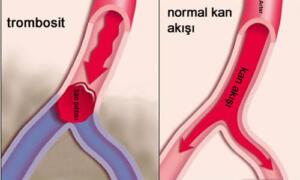 Kan pıhtılaşması nedir: Kan pıhtısı jel benzeri veya yarı katı haldeki kan kütlesine verilen isimdir. Kan pıhtılaşması ise yaralanma yahut kazayla bir yerimizi kesme gibi çeşitli durumlarda çok fazla kan kaybetmeyi engelleyen gerekli bir süreçtir. Kan pıhtısı belirtileri kan pıhtısının bulunduğu yere göre değişkenlik gösterir. Genel olarak kan pıhtılaşması belirtileri arasında kan pıhtılaşması olan yerde kızarıklık, ağrı veya uyuşma, zonklama, pıhtının olduğu yerde yanma hissi ve iltihap sayılabilir.