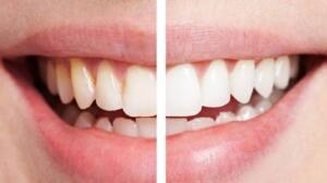 ÇİLEK EZMESİ: İki veya üç büyük çileği ezip bir macun haline getirin. Çilek ezmesini dişlerinize diş fırçası yardımıyla uygulayın. Üç ila beş dakika arası bekletip ağzınızı suyla çalkalayın. Bu karışımı haftada bir kez kullanın.