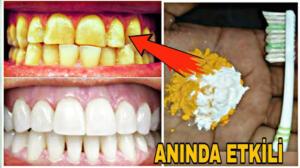 Evde 3 dakikada dişlerinizi beyazlatmak mümkün Güzel ve doğal bir yüzün en önemli unsurlarından biri bembeyaz parlayan dişlerdir. Evde sadece üç dakikada uygulayabileceğiniz diş beyazlatma kürü hazırlamak mümkün.