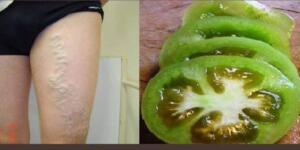 Varisi Ortadan Kaldıran Mucize! Yeşil Domates Tedavisi