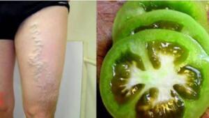 Bu kürü bir hafta boyunca düzenli olarak uygulayın. -Yeşil domates dışında, olgunlaşmış kırmızı domates de, varisli damarların kaybolmasına yardımcı olabilir.