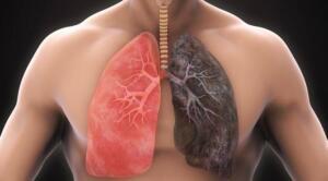 Sigara içenler için akciğerleri iyileştirmek, bu doğal yolları uygulamaktan geçiyor. Diğer tıbbi önlemlerle birlikte vücudunuzu desteklemenize yardımcı olacak bu ürünleri günlük yaşamınıza dâhil etmelisiniz.