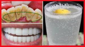 Çilek: Çilek, yüzeydeki zorlanmaları yok eden ve plak oluşumunu önleyen malik asit (beyaz, kristal yapılı, katı asit) içerir, zararlı bakterileri yok eder. Yapımı çok kolay. Ezerek püre haline getirdiğiniz çileği diş fırçasıyla sürün. Asit içerdiği için haftada 2 defadan fazla denemeyin. – Muz Kabuğu: Dişlerinizi fırçaladıktan sonra potasyum, magnezyum ve manganez zengini muz kabuğuyla 2 dakika ovun. Sonrasında macunsuz bir fırça ile temizleyin. – Sofra tuzu kullanın. Evde kullandığınız softa tuzuyla dişlerinizi fırçalarsanız hem renginin açıldığını hem de anti bakteriyel özelliği sayesinde dişlerin temizlendiğini göreceksiniz. Islattığınız diş fırçasını tuza batırıp fırçalamanız yeterli.