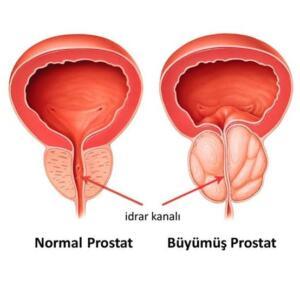 Prostat kanseri erken evrede hiçbir belirti vermeyebilir. Hastalık ilerledikçe ortasından geçen idrar kanalına bası yapar idrar yapma ile ilgili belirtiler ortaya çıkar. Bu belirtiler; idrar yapmada zorlanma, idrar yapamama, idrar tıkanıklığı, idrar yapmaya başlamada ve idrarı tutmada güçlük, sık idrara gitme, idrar akımında zayıflama, kesik kesik idrar yapma, idrar yaparken yanma ve kanlı idrar yapmadır. Ancak bu belirtiler iyi huylu prostat büyümesinde de (BPH) görülebilir.