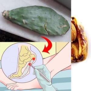 Bu bitkinin üst kabuğunu alıp çok az bir miktar alıp, minik minik doğrayıp, organik gerçek 3-4 yemek kaşığı zeytinyağında kaynatıp, ılık olarak ağrıyan yere bağlayın. Ardından ayağınıza poşet geçirin. Sabaha kadar kalacak ve 1 hafta ara vermeden yapılacak. 1 hafta sonunda topuk dikeninden kurtulacaksınız. Acı pul biber : Acı pul biberi ezin ve topuk dikenin üzerine gece yatarken bağlayın. Ard arda 5 gün kadar yapıldığında faydalı oluyor.