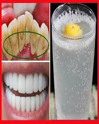 Hidrojen peroksitle beyazlatma: Amerikan Diş Hekimleri Birliği verilerine göre yüzde 3'lük hidrojen peroksitle dişleriniz kolay şekilde beyazlar. Eczaneden temin edeceğiniz hidrojen peroksitle diş beyazlatma yöntemi şöyle: 2 tatlı kaşığı yüzde 3'lük hidrojen peroksiti 3 tatlı kaşığı karbonatla karıştırın. İçine bir tutam tuz katın. Diş macunu kıvamına getirdikten sonra bu karışımla dişlerinizi fırçalayın. 2 dk. dişlerde beklettikten sonra ağzınızı suyla çalkalayın.