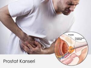 Prostat kanseri, erkeklerde prostat adı verilen ve idrar torbasının hemen altında bulunan yaklaşık kestane büyüklüğündeki bir organdan köken alan bir kanser türüdür. Kötü huylu prostat büyümesi olarak da bilinir. Prostat kanseri iyi huylu prostat büyümesinden ( BPH, benin prostat hiperplazisi) farklı bir hastalıktır.