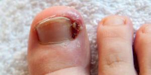 Batık tırnak rahatsızlığı olarak da bilinen tırnak batması insanların ortak sorunlarından biridir. Ayak tırnağının köşesi veya yan kenarı, yakındaki derinin yumuşak eti içine büyür, bu büyüme ile rahatsızlık artar. Tırnak batması dar ayakkabı giyinmek, yanlış tırnak kesimi, tırnak yaralanması yada ayak tırnağının alışılmadık kavisli bir şekil almasından kaynaklanır.
