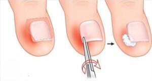 3. Epsom Tuz Bilimsel anlamda magnezyum sülfat olarak bilinen ingiliz tuzu, tırnak batmasının tedavisinde oldukça etkilidir. Bu tuz etkilenen alanın çevresinde ki cildi yumuşatmaya yardımcı olur ve batık tırnağı kolaylıkla dışarı doğru çeker. Ayrıca iltihabın tedavisine de yardımcı olur. Ilık su ile dolu bir ayak küvetine 1 yemek kaşığı Epsom tuz katıp karıştırın. Ayaklarınızı 20 dakika boyunca bu suda bekleterek ıslatın. Ayaklarınızı sudan çıkarttıktan sonra iyice ayakları kurulayın. Bu etkili yöntemi haftada 3 ya da 4 kez tekrarlayın.