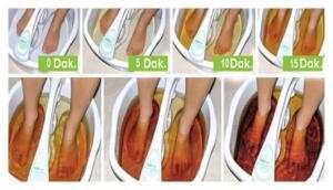 Özellikle orta kısmını ayağımızın taban kısmına getirerek yapıştırın ve çorabınızı giyin. Ertesi sabah pedi çıkarttığınızda rengi görünce şok olacaksınız. Renk değişimi kişiden kişiye göre az ya da çok olarak değişir. Rengin açık olması kan dolaşımınızın ve lenf sisteminizin güzel çalışması anlamına gelir.