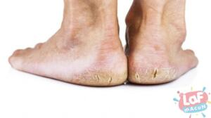 Topukların kirli yerlere maruz kalması Uzun süreli sert zeminlerde aşırı yürüyüş yapmak Uzun süre ayakta durmak