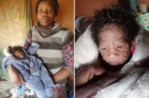 Güney Afrika'da bir bebek, çocukların hızla yaşlanmasına neden olan ve dört ila sekiz milyon insandan birini etkilediği bilinen progeria hastalığıyla dünyaya geldi. Yeni anne, çok nadir görülen bir durumla dünyaya gelen 'kendisinden daha yaşlı görünen' bir kızı doğurduktan sonra sosyal medyada viral oldu.