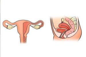 Vitamin eksikliğinden de kaynaklandığı için hastaya sağlıklı beslenme programı uygulanır. Çok zayıf kişilerde de görülen bir durum olduğu içi diyetisyen kontrolünde ideal kiloya ulaşması için kilo alma programı uygulanır. Tedavi sonucunda adet düzensizliği ortadan kalkar. Adet düzensizliği tedavisi kadın doğum uzmanları ile yapılmaktadır. Ultrason ve kan tahlilleri sonucunda doktorunuz uygun tedavi yöntemini önerir. Düzensizliğe neden olan faktörler ortadan kalkınca regl dönemi de düzene girer.
