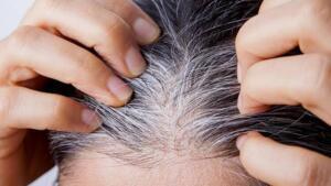 Çaylardan vitaminlere saçlarınızın beyazlamasını önleyebilecek hatta beyazlayan saçlarınızı eski haline döndürecek birçok doğal bakım ve beslenme şekli var. Saç ürünlerinin çoğu zararlı kimyasallarla dolu olabileceğinden pek çok kişi artık daha doğal çözümlere yöneliyor. Doğru vitamin ve besinleri yeterince aldığınızdan emin olmak, kendinizi erken saç beyazlamasından korumak için harika bir başlangıç olabilir. İşte evinizde de rahatlıkla uygulayarak beyaz saçlarınızdan kurtulmanızı sağlayacak en doğal yollar…