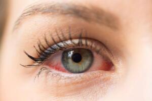 Bu baharat 'sarı nokta göz hastalıkları'na iyi geliyor İtalyan uzmanların söylediğine göre,yaşla bağlantılı ortaya çıkabilen sarı nokta hastalığını ortadan kaldıracak ve yaşınız kaç olursa olsun görüşünüzü %97 oranında iyileştirecek basit bir baharat var! Sarı nokta hastalığı, insanlarda körlüğün ana sebebi olarak gösterilebilir. Sarı noktamız, görme alanından sorumlu olup gözümüzün merkezinde bulunur. Bizler yaşlandıkça, sarı noktamız fonksiyonlarını yitirmeye başlar. Bu da görmede kayıplara neden olur. Bu hastalık, buğulu görmeye kadar yavaşça ilerler ve en son noktası olan körlüğe kadar gidebilir.