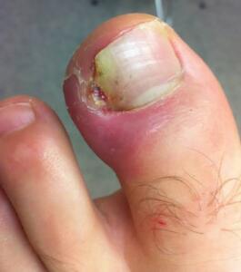 Tırnak batması dar ayakkabı giyinmek, yanlış tırnak kesimi, tırnak yaralanması yada ayak tırnağının alışılmadık kavisli bir şekil almasından kaynaklanır.