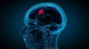 Nöbetler her zaman bir beyin tümöründen kaynaklanmayabilir. Nöbetlerin diğer nedenleri arasında nörolojik problemler, beyin hastalıkları ve ilaç kesilmesi sayılabilir. İŞİTME GÜÇLÜĞÜ Kraniyal sinirler çevresinde ve temporal lob gibi bölümlerde ortaya çıkan bir beyin tümörü, işitme sorunlarıyla karşılaşmanıza neden olur. Bu nedenle işitme güçlüğü sorunları ile karşılaştığınızda ilk olarak biz uzman yardımı almanız, hızlıca sonuca ulaşmanıza da yardımcı olacaktır.