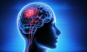 Tüm bunlara rağmen baş ağrınız eskisinden daha fazla ya da eskisinden daha kötü olsa bile, bu beyin tümörünüz olduğu anlamına gelmez. Fakat insanlar, atlanan bir yemekten, uykusuzluktan sarsıntı veya felce kadar çeşitli nedenlerle baş ağrısı çekerler.