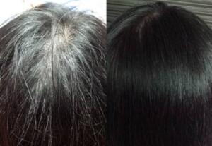 Nasıl kullanılır: Beyaz saçlar daha kuru ve kırılgan olduğu için önce onları nemlendirmemiz lazım. Bu yüzden önce her zaman yaptığınız gibi saçınızı şampuan ve saç kremi ile yıkayın. Ardından hazırladığınız kürü saçınıza dökün ve masaj yaparak saç derinize yedirin. Beş dakika bu şekilde beklettikten sonra ılık suyla durulayın. İşte bu kadar! Bu karışımı haftada 2-3 kez uygulayabilirsiniz. Yalnız yazının başında da belirttiğimiz gibi sonuçları hemen göremeyeceksiniz. Ama birkaç hafta içinde saçlarınızdaki beyazların azaldığını ve saçınızın kendi rengine döndüğünü fark edeceksiniz. Beyazsız yeni saçlarınızı güle güle kullanın!